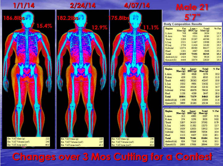 Here is an example of how serial DXA Scanning and our Zone/Paleo Nutrition helped a 21 year old male cut for a contest!
