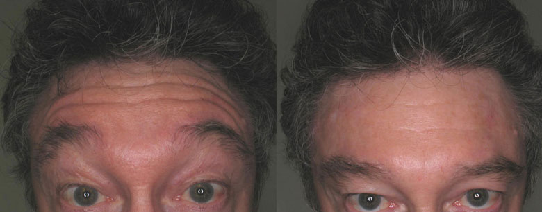 Before and After Forehead Botox Results!