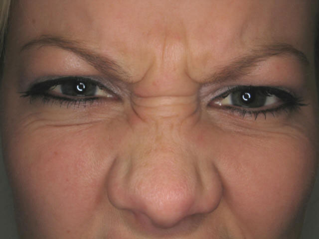 Before and After Frown Line Botox Results!